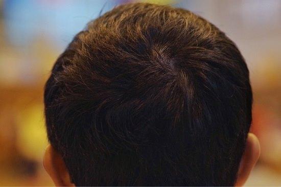 髪の毛画像