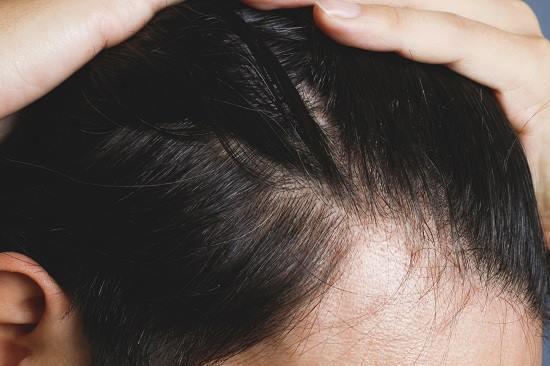 前髪の男性の画像