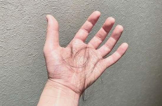 髪の毛_栄養不足の画像