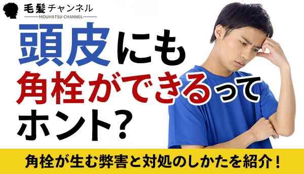 頭皮にも角栓ができるってホント?角栓が生む弊害と対処のしかたを紹介!